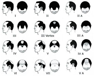 classification_homme_calvitie